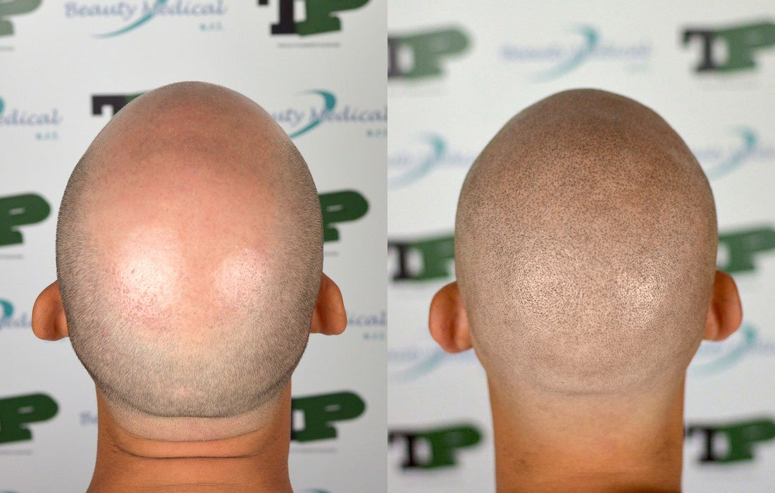 tricopigmentazione leo88